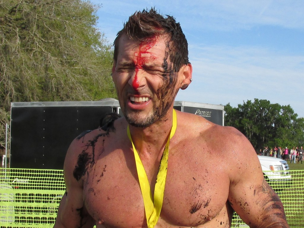 Dodging Injury at Obstacle Course Races
